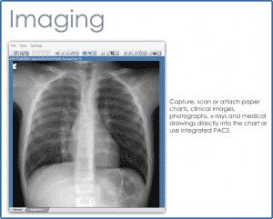 CMD_Imaging_LG
